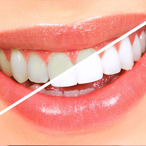 Teeth Whitening: Facts That You Must Know About