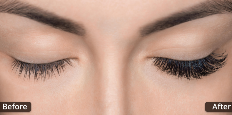 How to Apply Careprost Eye Drops?