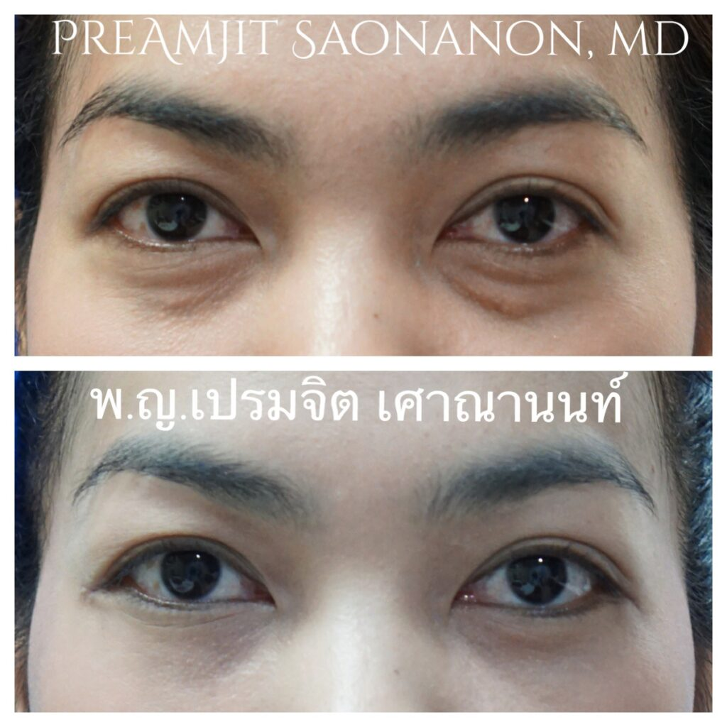 Is Under Eye Bag Surgery A Permanent Remedy?