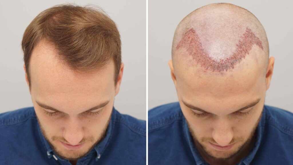10 Things You Must Know About Non-Surgical Hair Replacement in Dubai