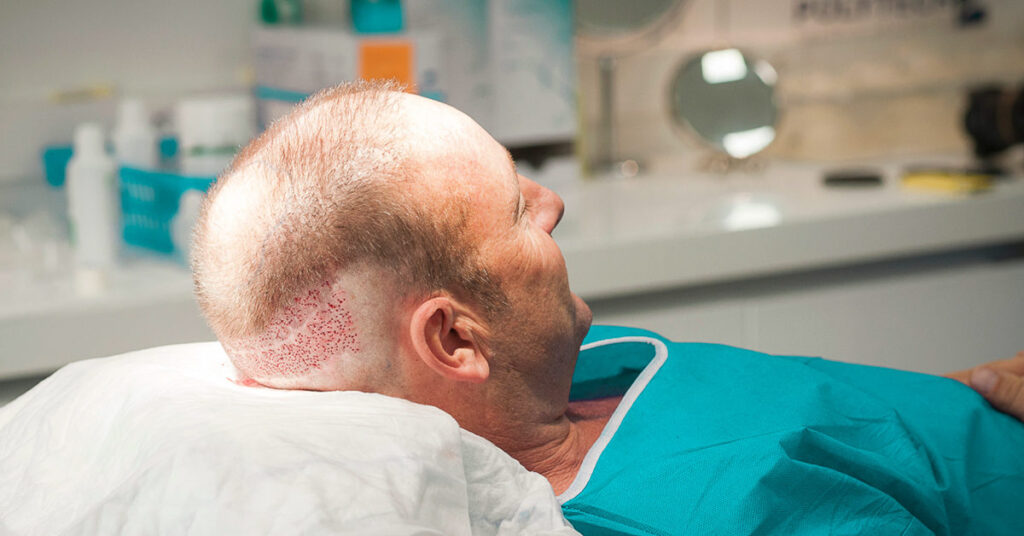Why is FUE considered the best treatment for hair transplant in Dubai?