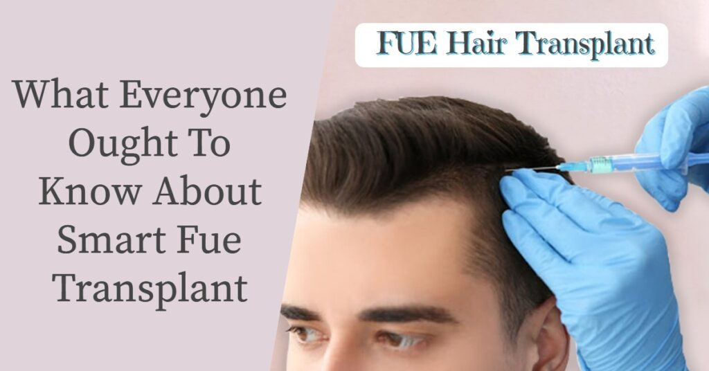What Everyone Ought To Know About Smart FUE Transplant