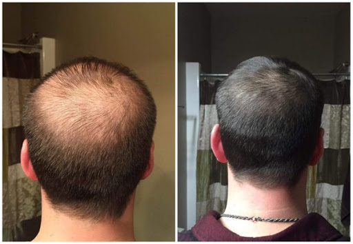 How to Avoid PRP Hair Treatment Side-Effects?