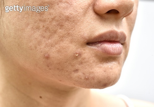 Treating Acne Scars with Laser
