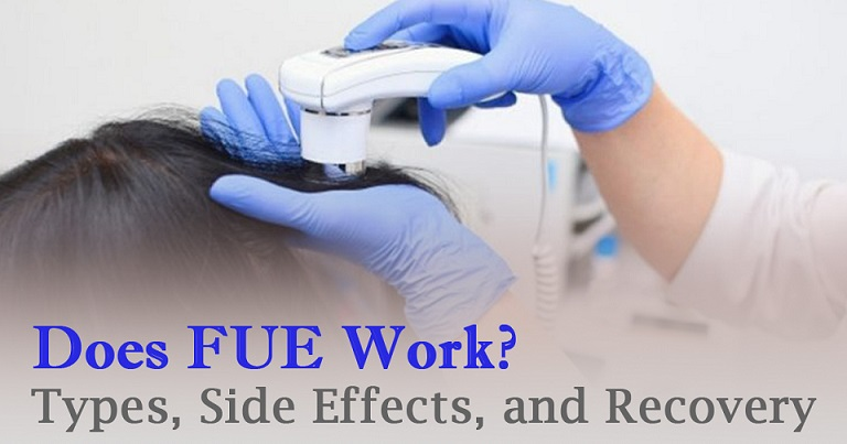 Does FUE Work? Types, Side Effects, and Recovery