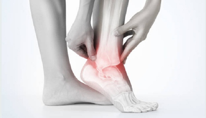 heel pain treatment Westport CT