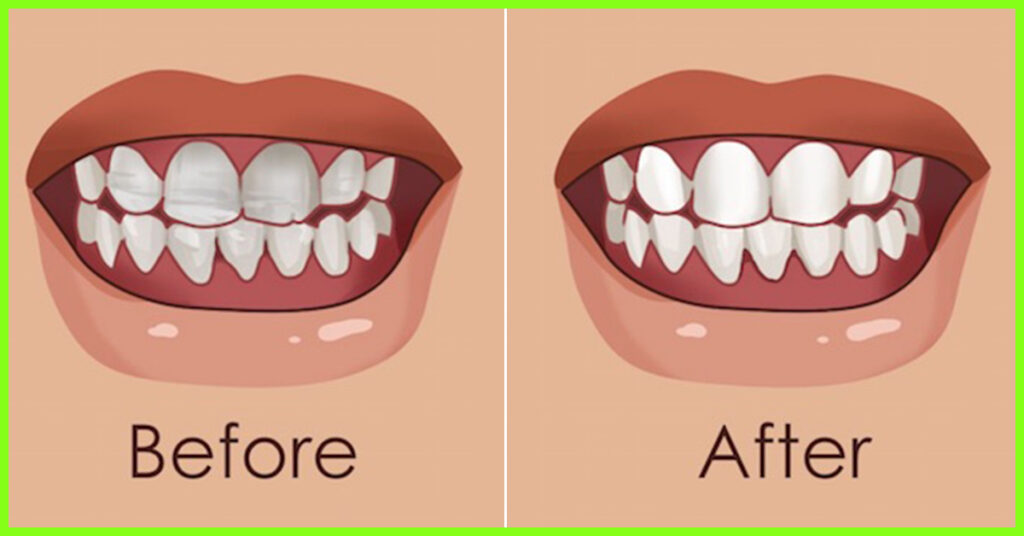 The advantages treatments for loose teeth