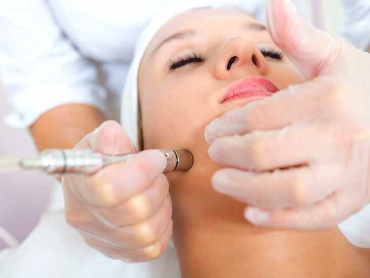 An Insight into Microdermabrasion
