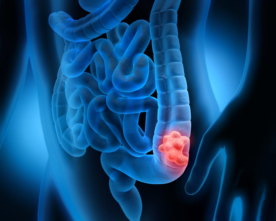 How to Detect Colon Cancer Symptoms?