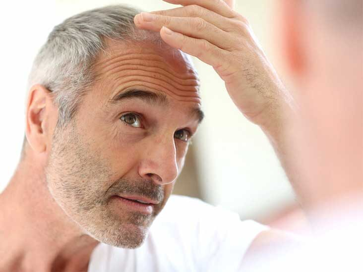 Hair Growth Treatments to Cure Hair Loss