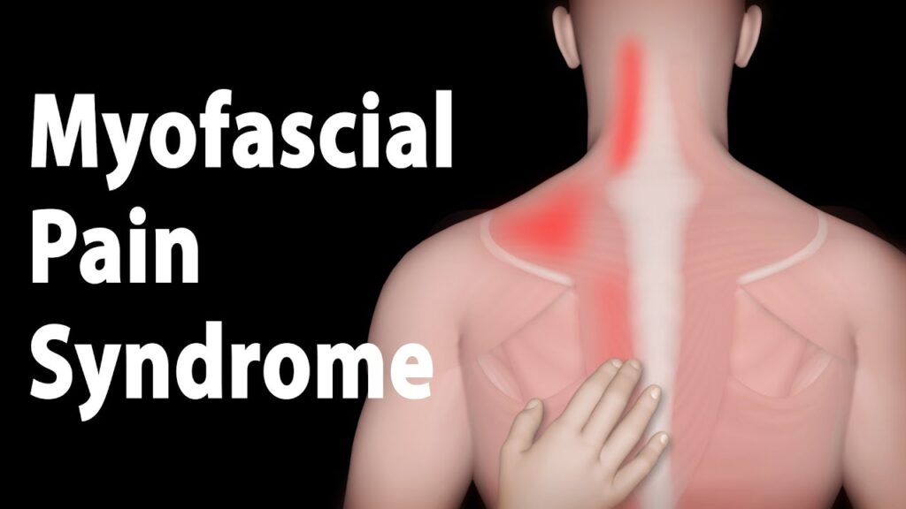 Why Should You Consult a Pain Specialist for Myofascial Pain?